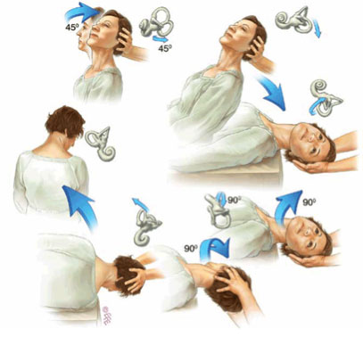 Physiotherapy treatment for vertigo (BPPV)