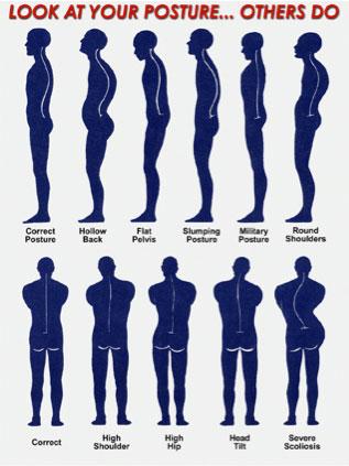 Posture Correction 2